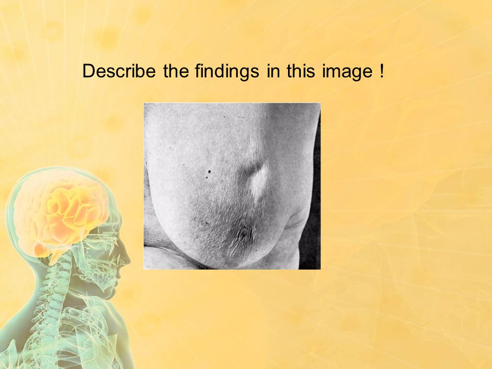 Describe the findings in this image !