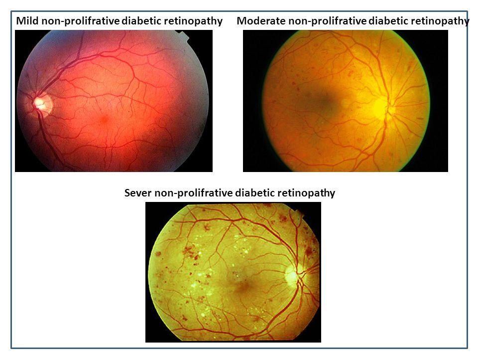 Mild non-prolifrative diabetic retinopathyModerate non-prolifrative diabetic retinopathy Sever non-prolifrative diabetic retinopathy