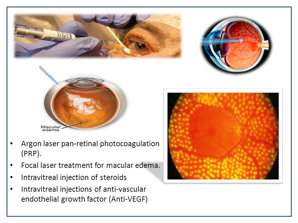 Argon laser pan-retinal photocoagulation (PRP).Focal laser treatment for macular edema.