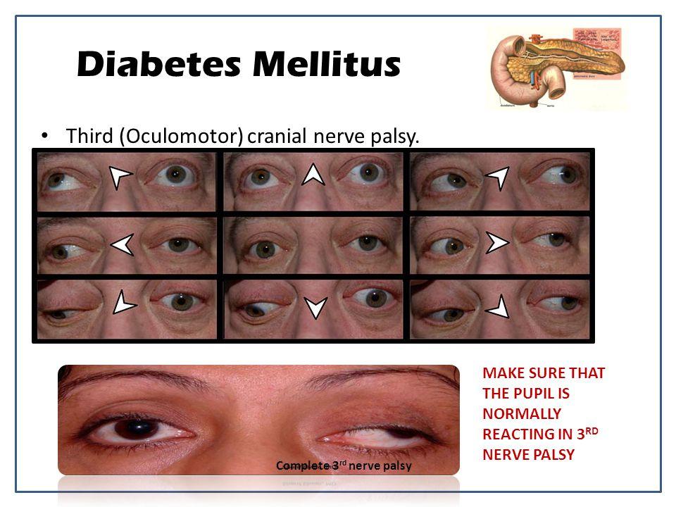 Third (Oculomotor) cranial nerve palsy.