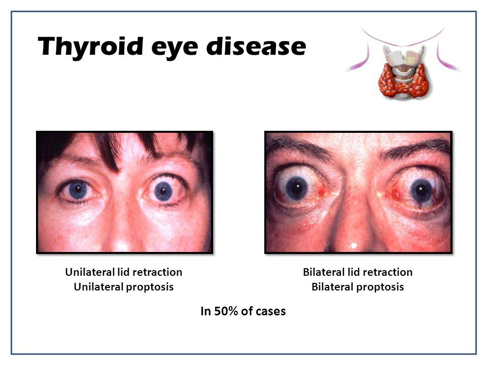 Thyroid eye disease Unilateral lid retraction Unilateral proptosis Bilateral lid retraction Bilateral proptosis In 50% of cases
