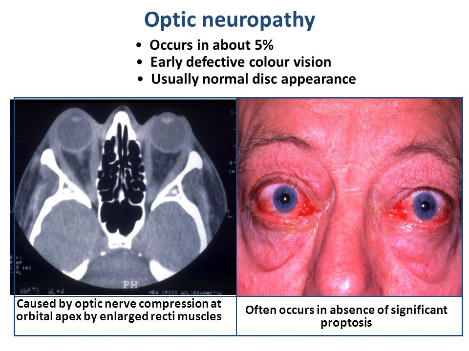 Optic neuropathy Occurs in about 5% Early defective colour vision Usually normal disc appearance Caused by optic nerve compression at orbital apex by enlarged recti muscles Often occurs in absence of significant proptosis