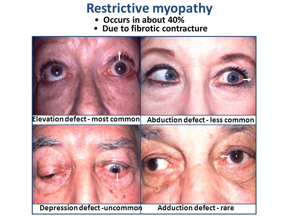 Occurs in about 40% Due to fibrotic contracture Restrictive myopathy Elevation defect - most common Abduction defect - less common Depression defect -uncommonAdduction defect - rare