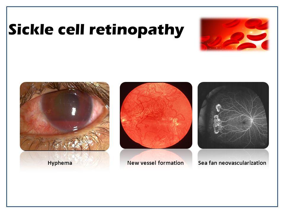 Sickle cell retinopathy New vessel formationSea fan neovascularizationHyphema