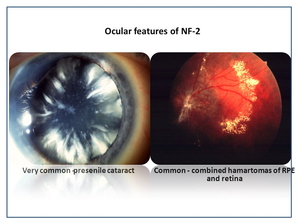 Ocular features of NF-2 Common - combined hamartomas of RPE and retina Very common -presenile cataract