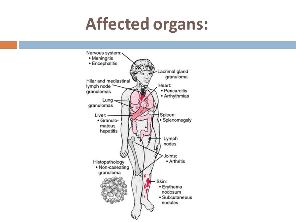 Affected organs: