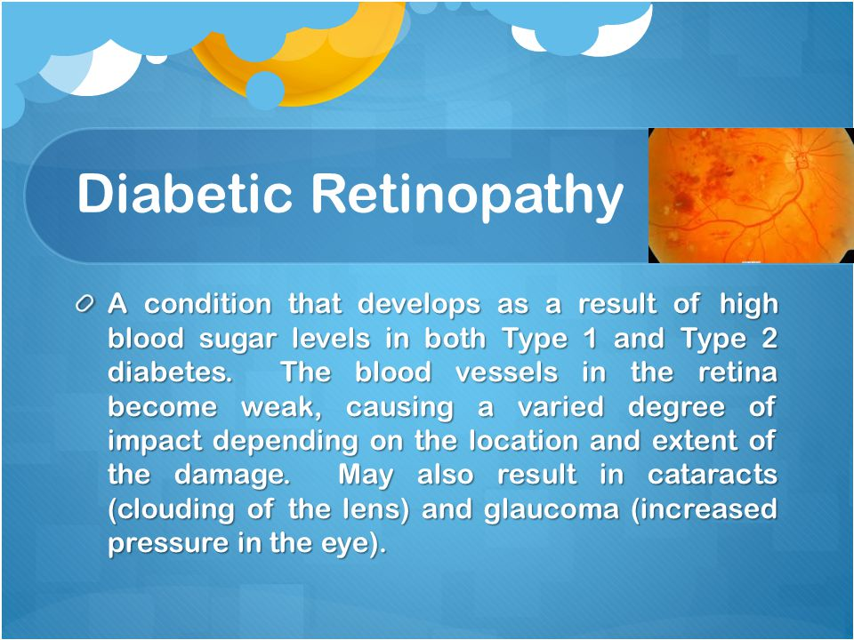 Diabetic Retinopathy A condition that develops as a result of high blood sugar levels in both Type 1 and Type 2 diabetes.