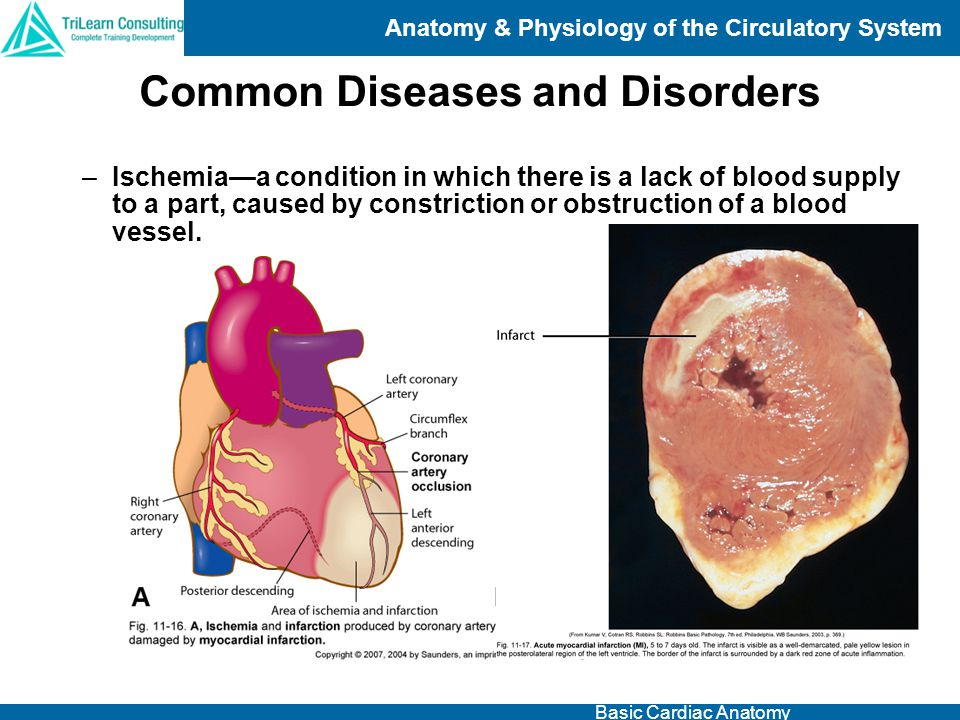 Anatomy & Physiology of the Circulatory System Basic Cardiac Anatomy –Ischemia—a condition in which there is a lack of blood supply to a part, caused