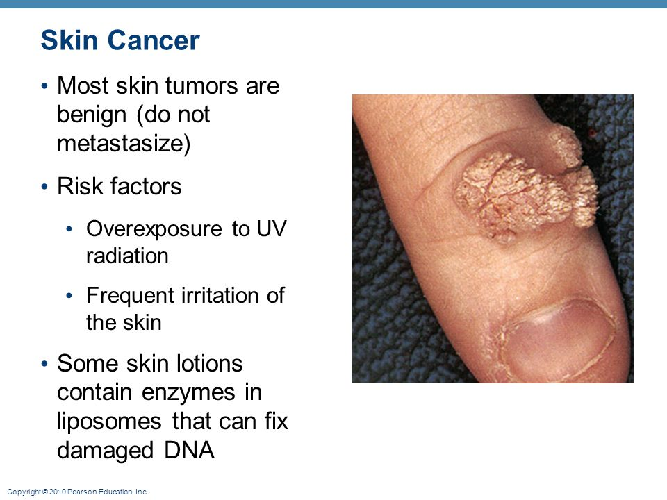 Copyright © 2010 Pearson Education, Inc. Skin Cancer Most skin tumors are benign (do not metastasize) Risk factors Overexposure to UV radiation Freque