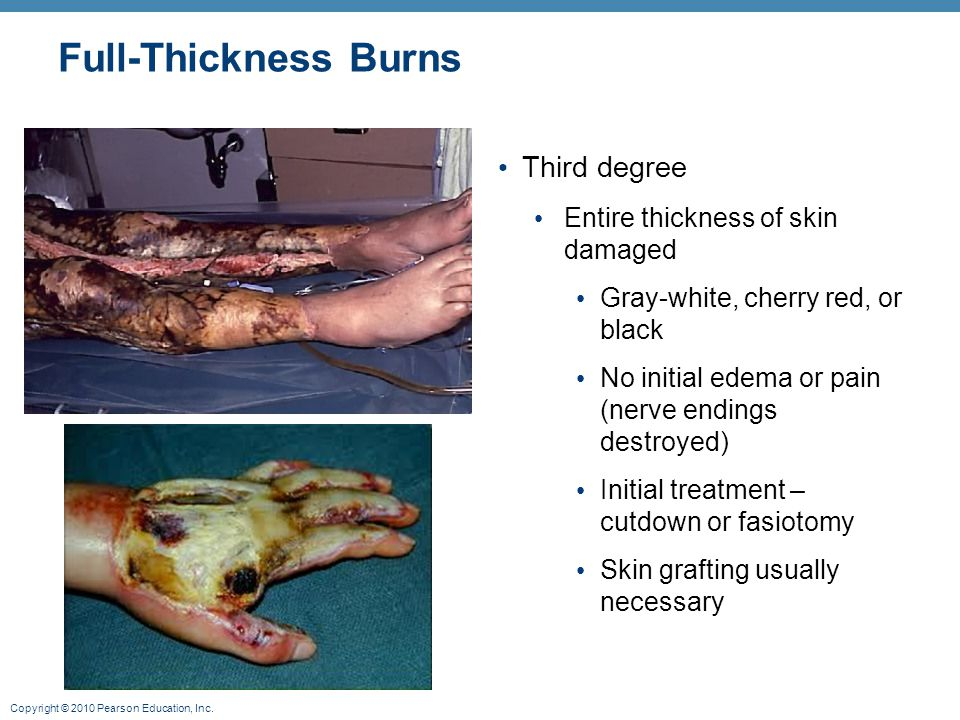 Copyright © 2010 Pearson Education, Inc. Full-Thickness Burns Third degree Entire thickness of skin damaged Gray-white, cherry red, or black No initia