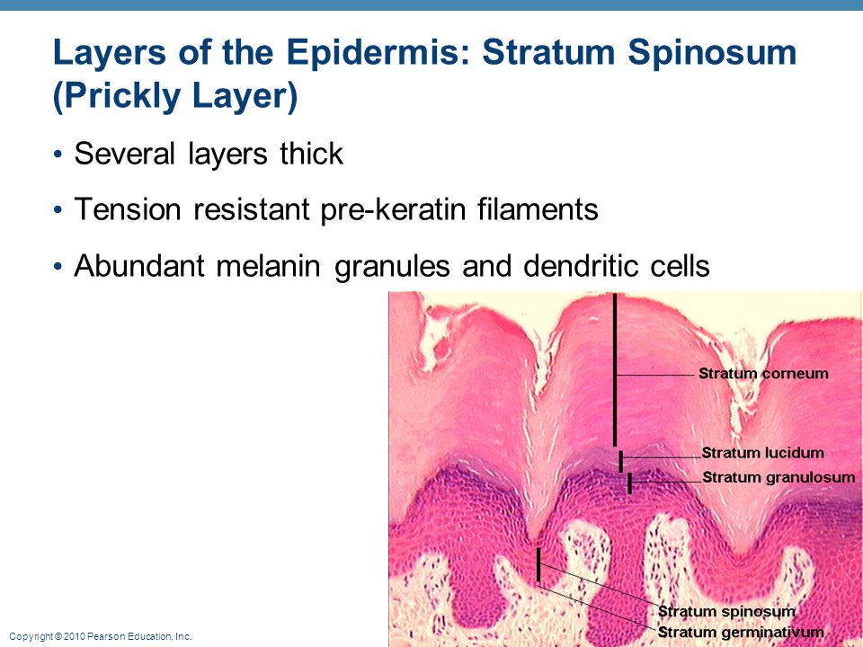 Copyright © 2010 Pearson Education, Inc. Layers of the Epidermis: Stratum Spinosum (Prickly Layer) Several layers thick Tension resistant pre-keratin