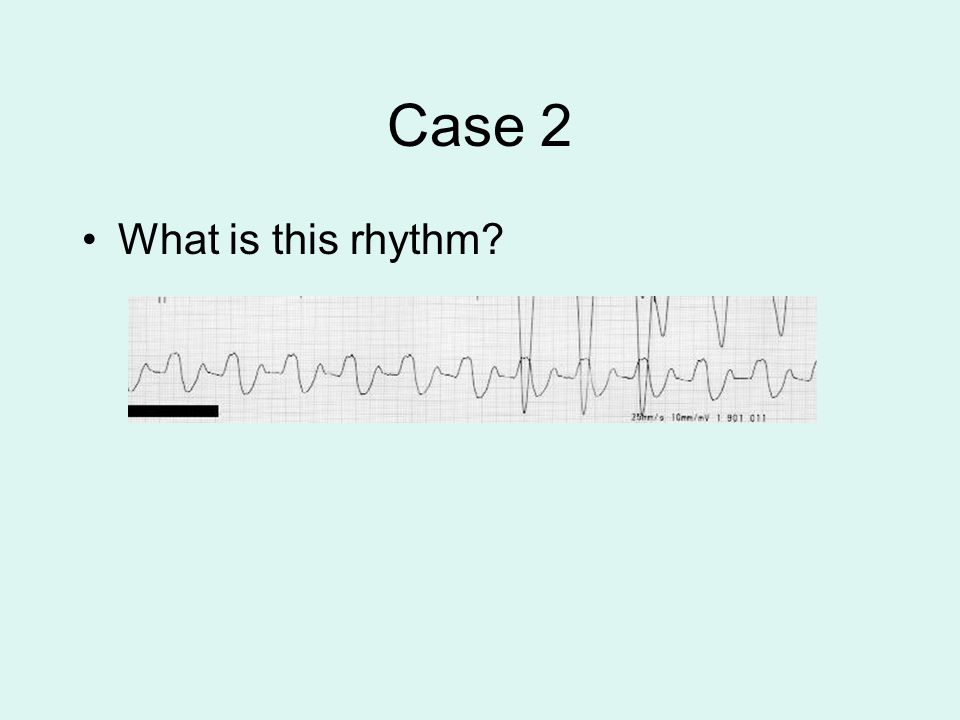 Case 2 What is this rhythm