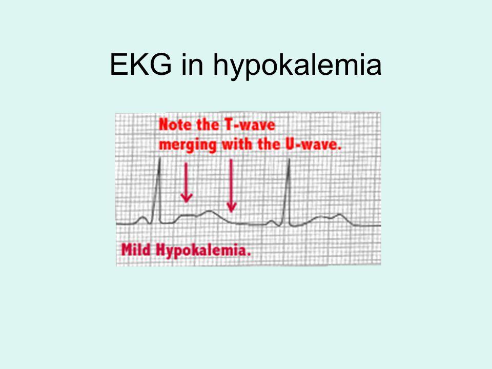 EKG in hypokalemia