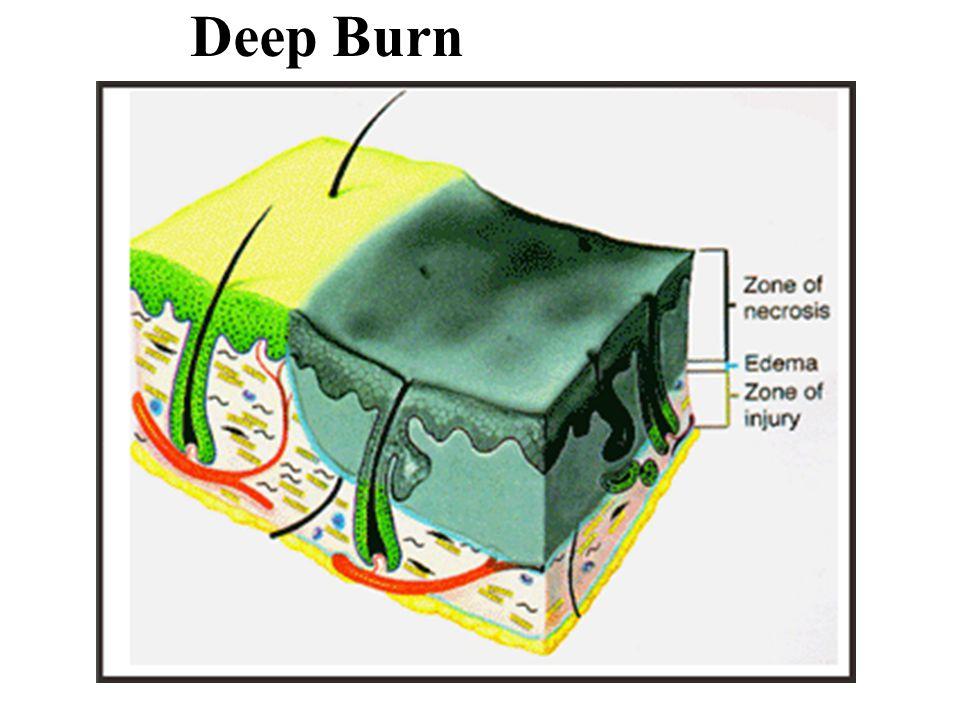Deep Burn