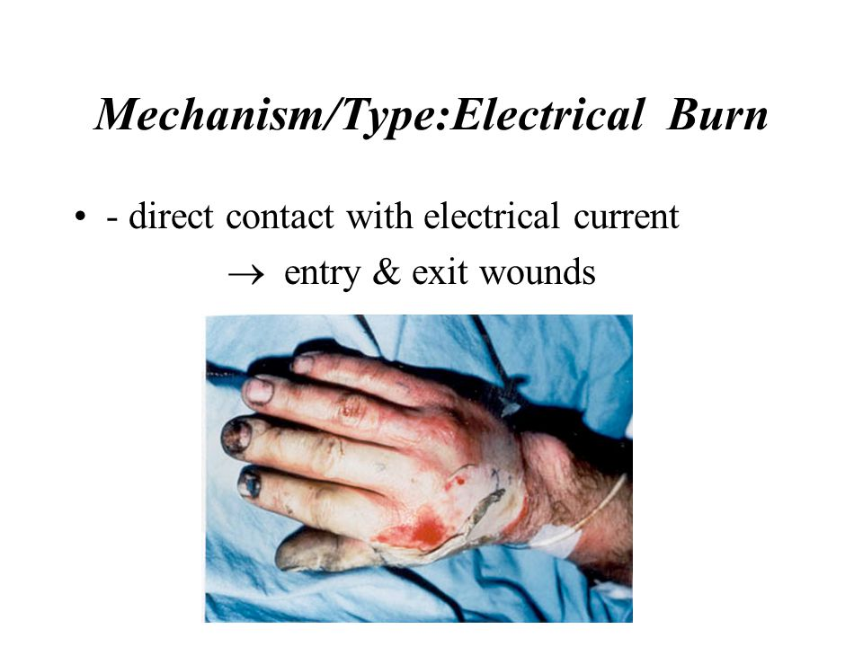 Mechanism/Type:Electrical Burn - direct contact with electrical current  entry & exit wounds