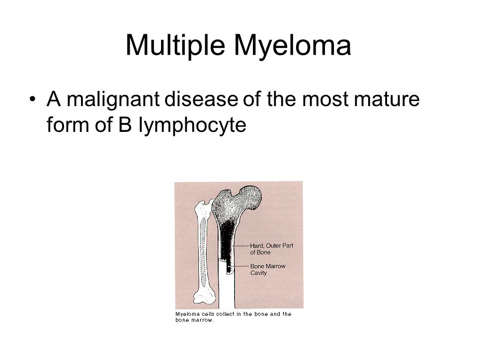 Multiple Myeloma A malignant disease of the most mature form of B lymphocyte