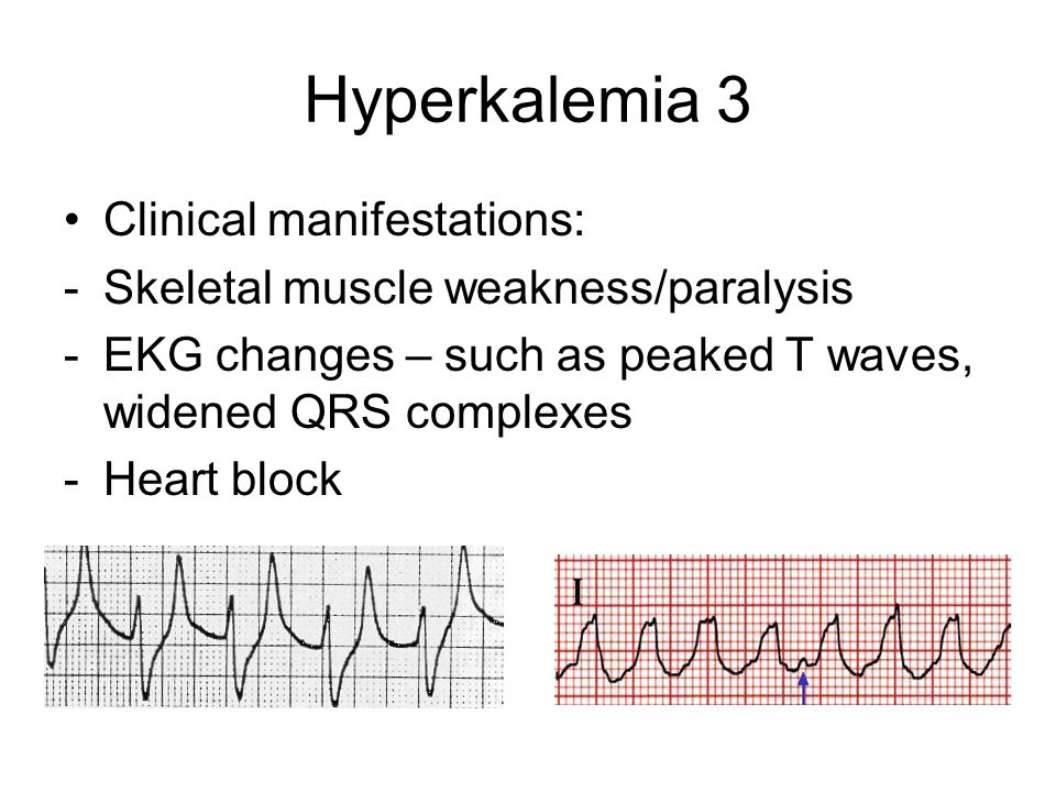 Hyperkalemia 3 Clinical manifestations: -Skeletal muscle weakness/paralysis -EKG changes – such as peaked T waves, widened QRS complexes -Heart block