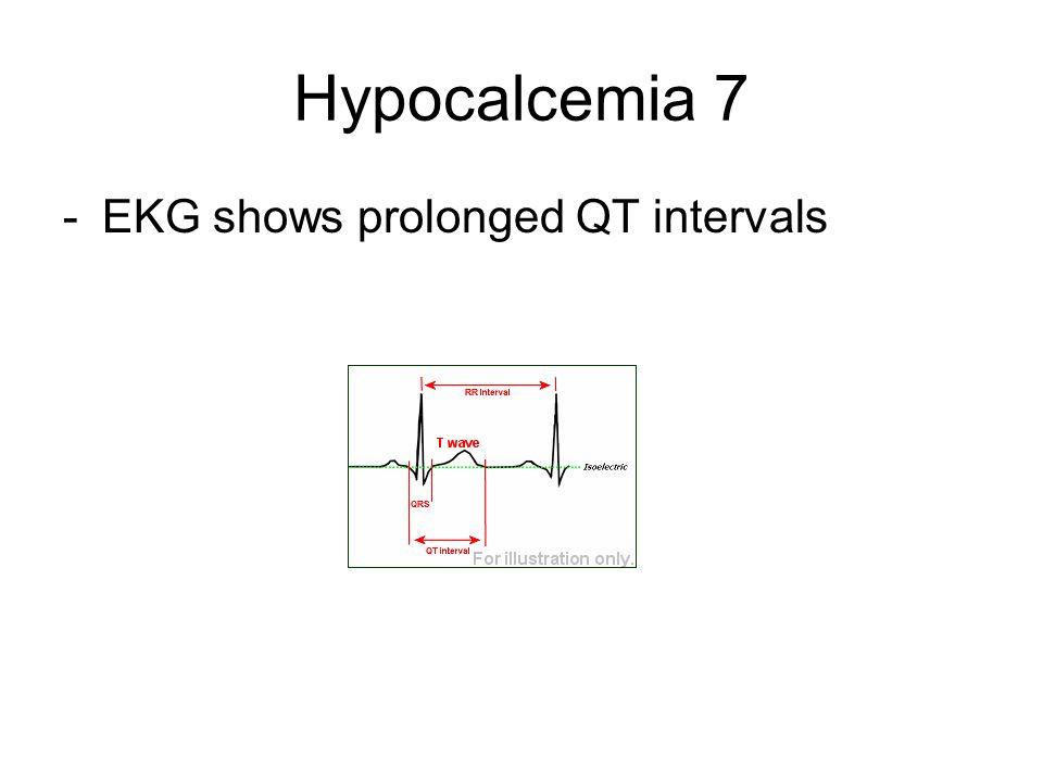 Hypocalcemia 7 -EKG shows prolonged QT intervals