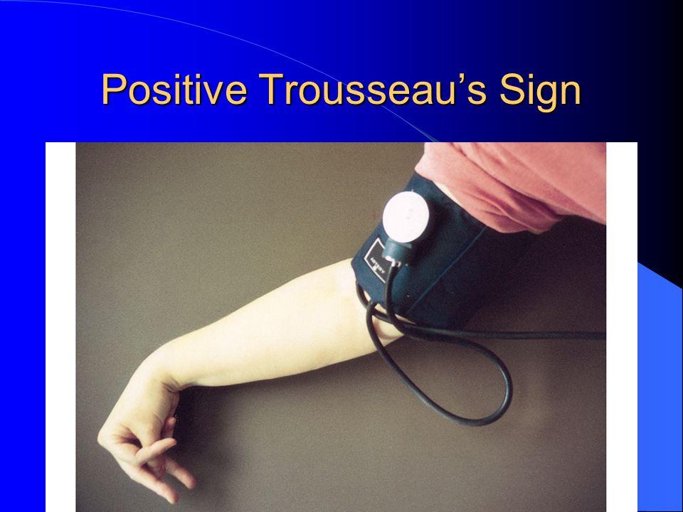 Positive Trousseau's Sign