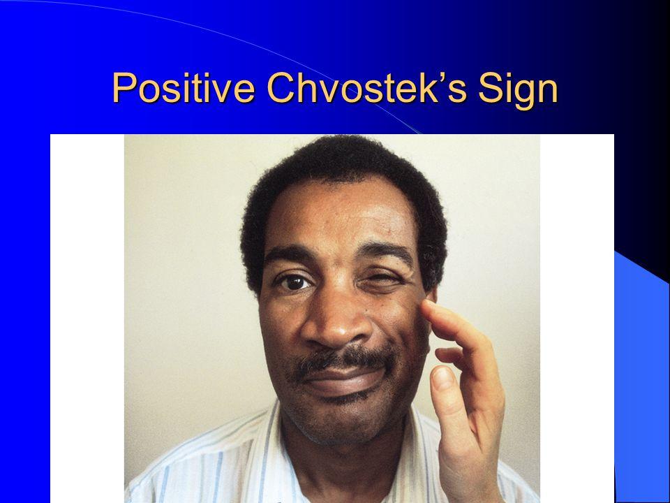 Positive Chvostek's Sign