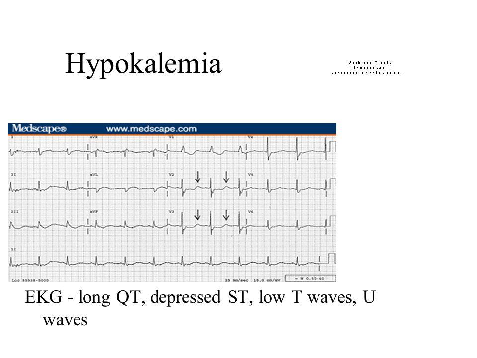 Hypokalemia EKG - long QT, depressed ST, low T waves, U waves