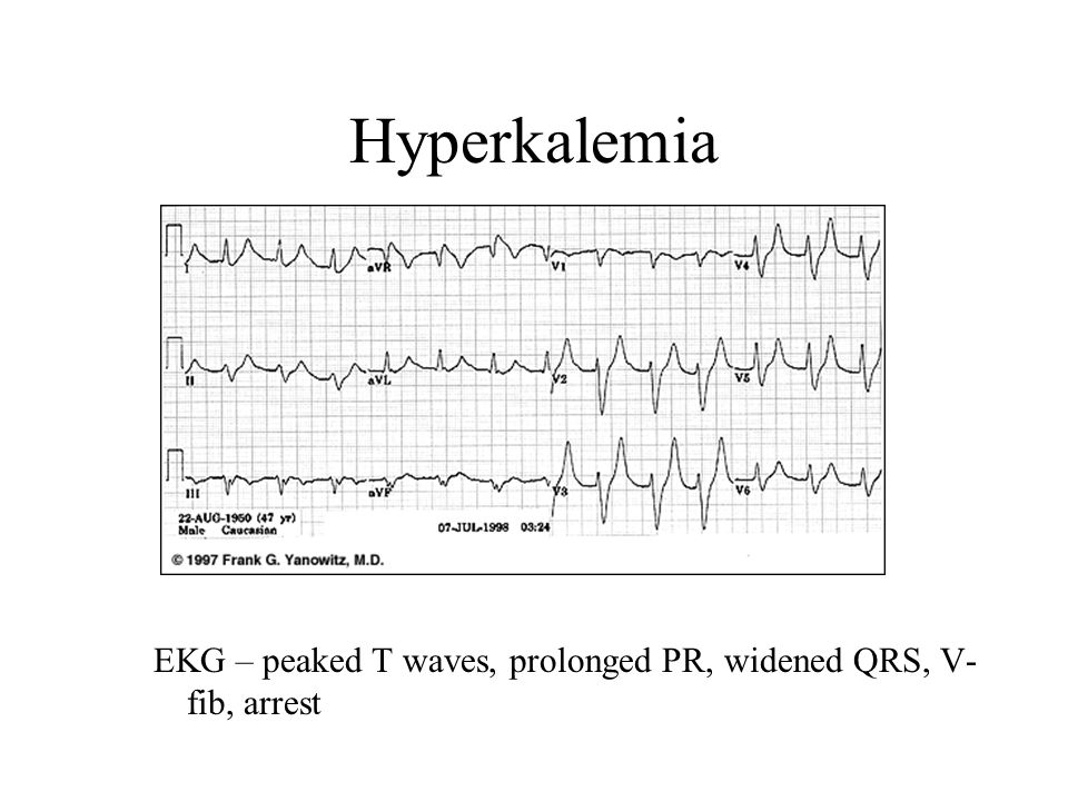 Hyperkalemia EKG – peaked T waves, prolonged PR, widened QRS, V- fib, arrest