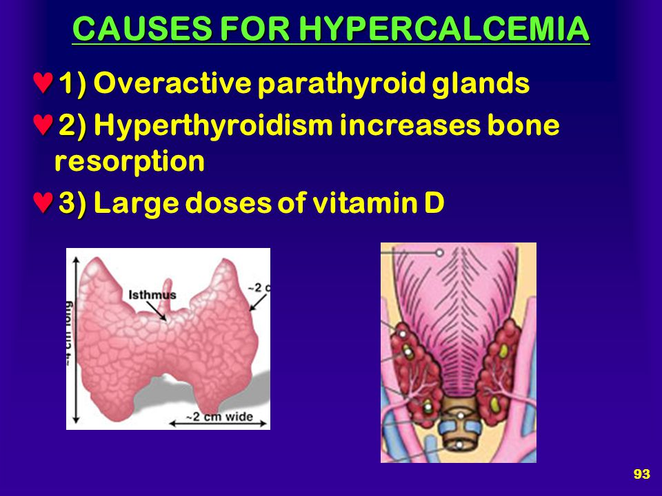 92 HYPERCALCEMIA High High levels of Ca ++ :  Interfere with nerve impulse  Interfere with muscle contraction  May cause kidney stones  May precip