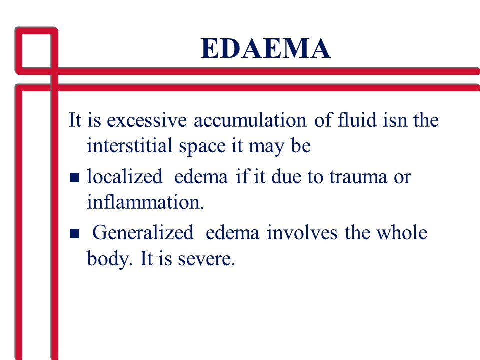EDAEMA It is excessive accumulation of fluid isn the interstitial space it may be n localized edema if it due to trauma or inflammation. n Generalized