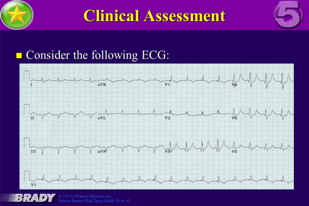 Clinical Assessment n Consider the following ECG: Figure 3.5-5 © 2007 by Pearson Education, Inc.