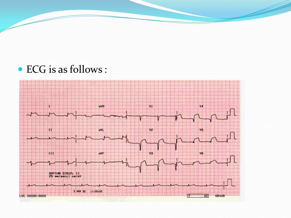 ECG is as follows :