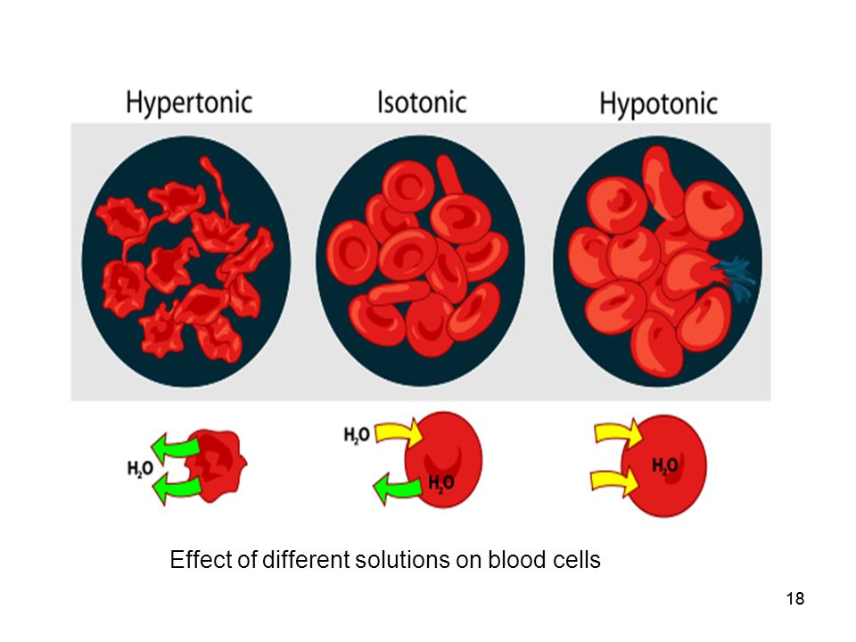 18 Effect of different solutions on blood cells