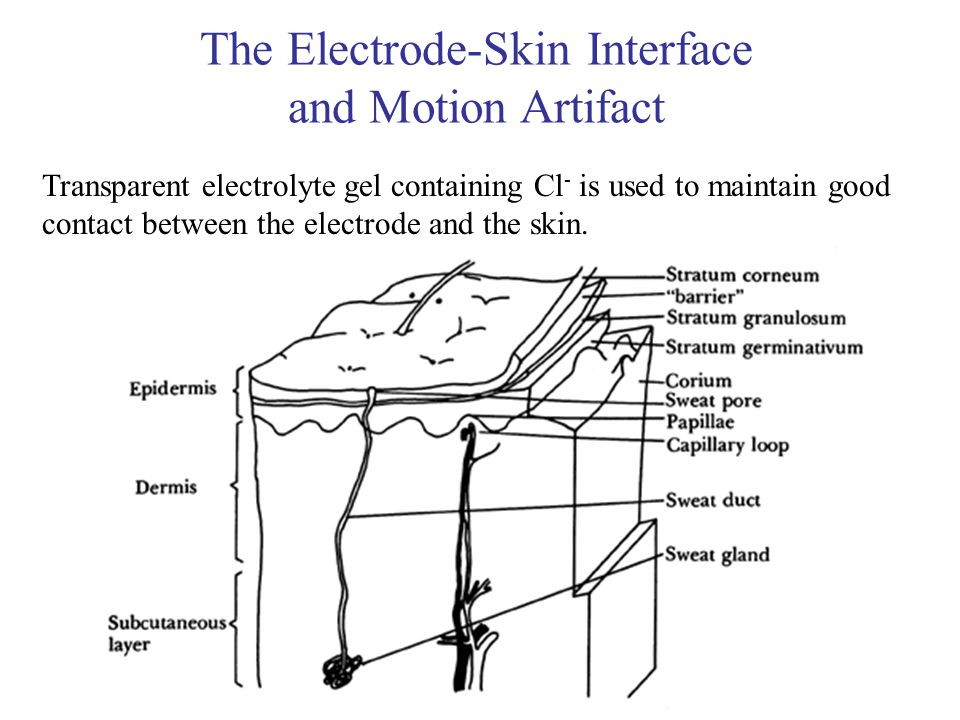 The Electrode-Skin Interface and Motion Artifact Transparent electrolyte gel containing Cl - is used to maintain good contact between the electrode an