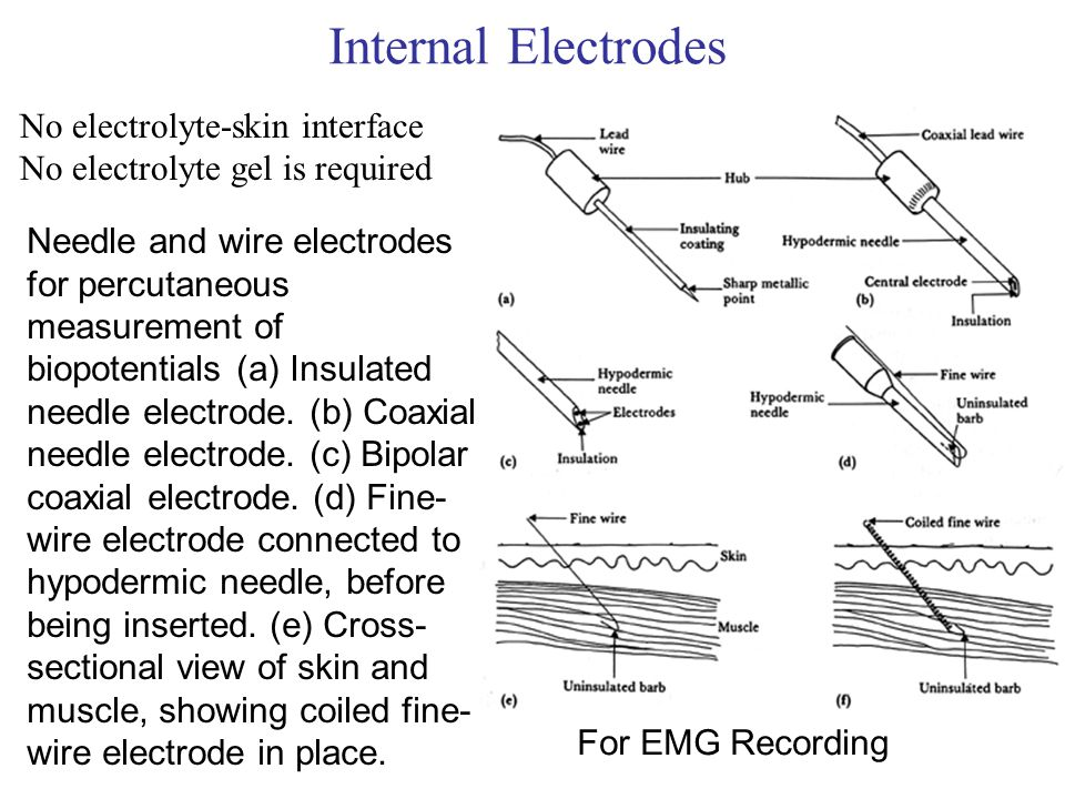 Internal Electrodes No electrolyte-skin interface No electrolyte gel is required Needle and wire electrodes for percutaneous measurement of biopotenti
