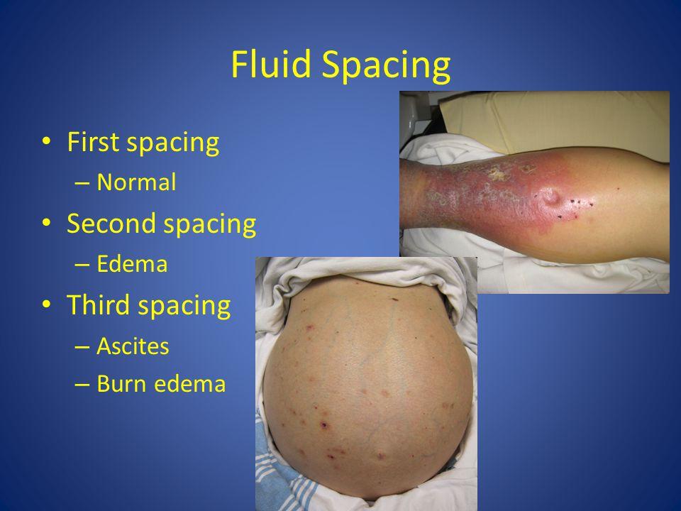 Fluid Spacing First spacing – Normal Second spacing – Edema Third spacing – Ascites – Burn edema