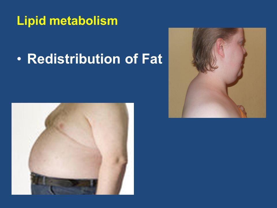Redistribution of Fat Lipid metabolism