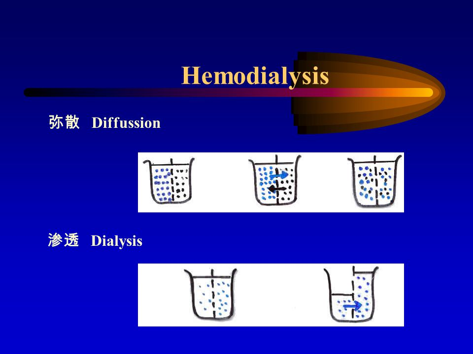 Hemodialysis 超滤 Ultrofiltration 对流 Conduction 正压 负压
