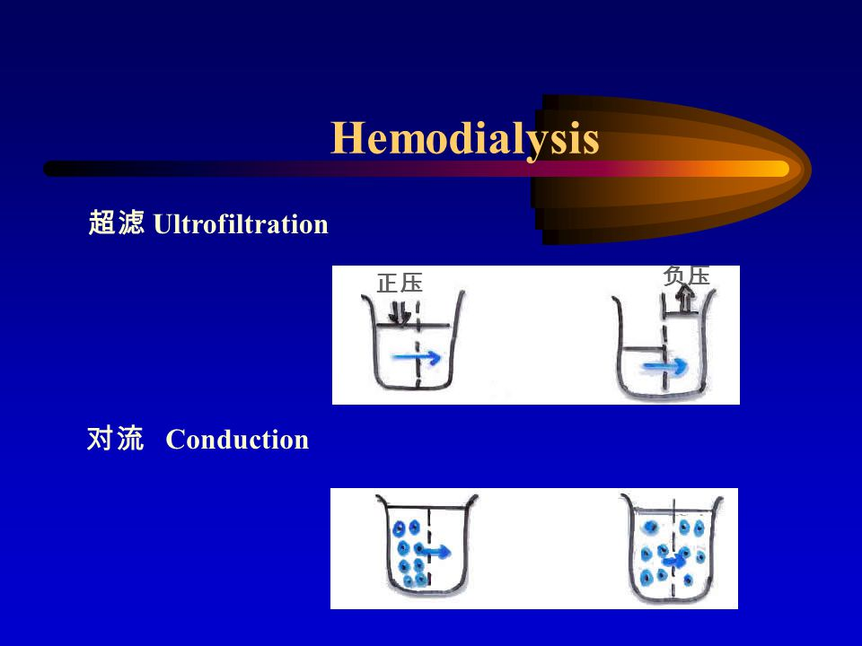 Contraindications of HD Shoke Severe caidioc complications Severe bleeding malignency, sepsis poor condition in vascular system