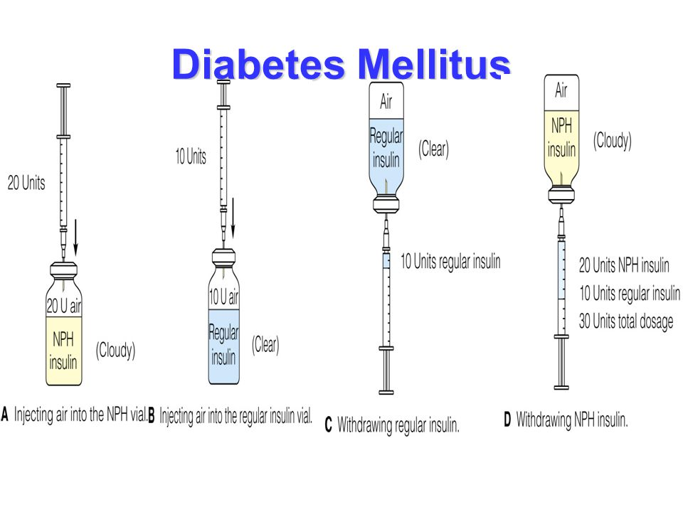Diabetes Mellitus Mixing insulin