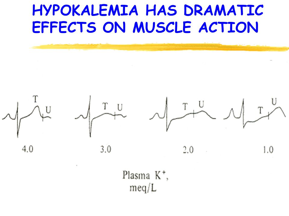 HYPOKALEMIA HAS DRAMATIC EFFECTS ON MUSCLE ACTION
