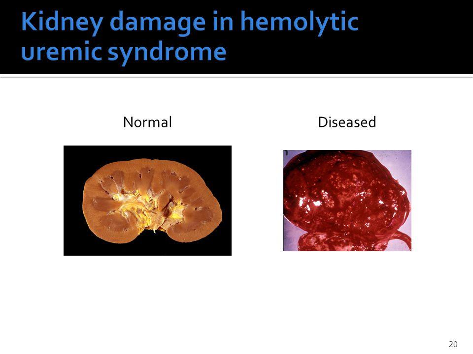 20 DiseasedNormal
