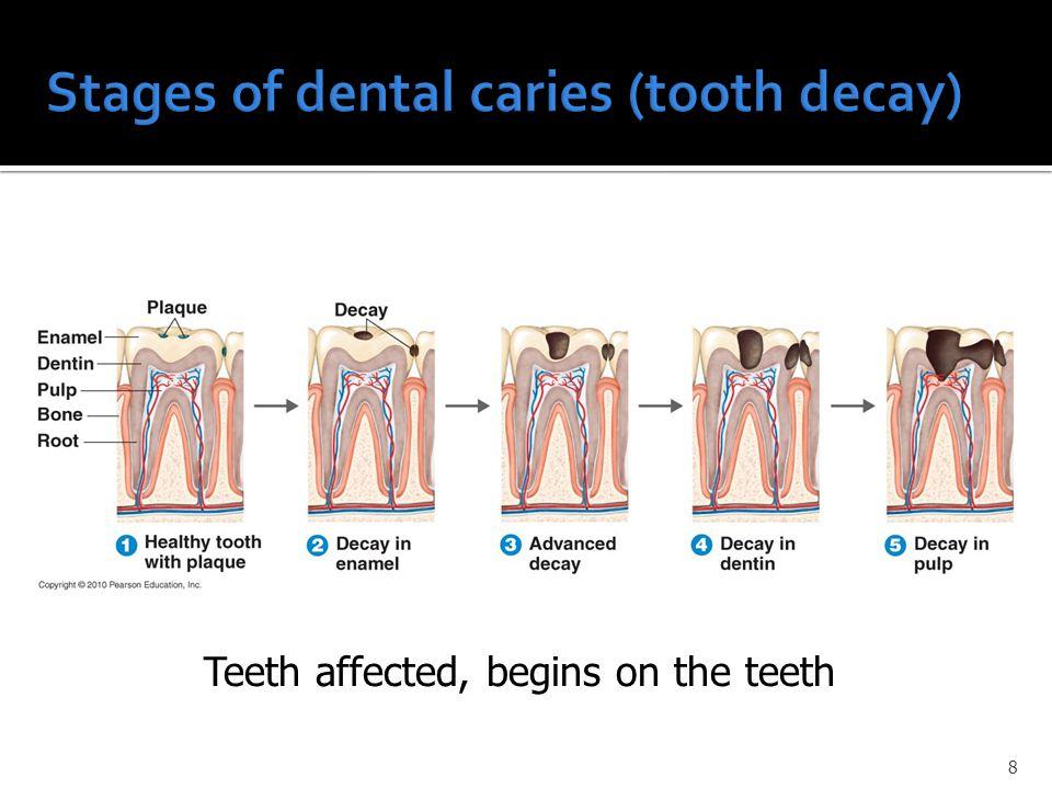 8 Teeth affected, begins on the teeth