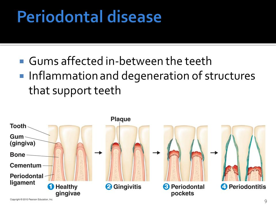  Gums affected in-between the teeth  Inflammation and degeneration of structures that support teeth 9
