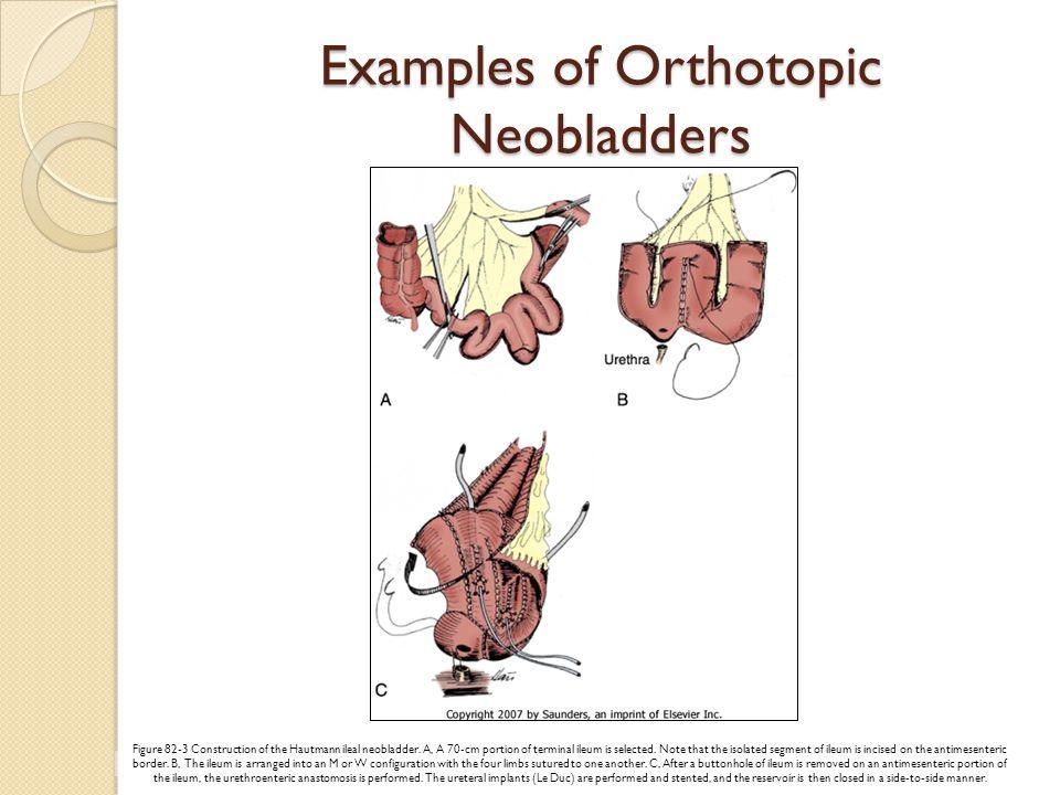 Osteomalacia Symptoms ◦ Diffuse skeletal pain ◦ Bone tenderness ◦ Fractures ◦ Gait disturbance ◦ Proximal muscle weakness