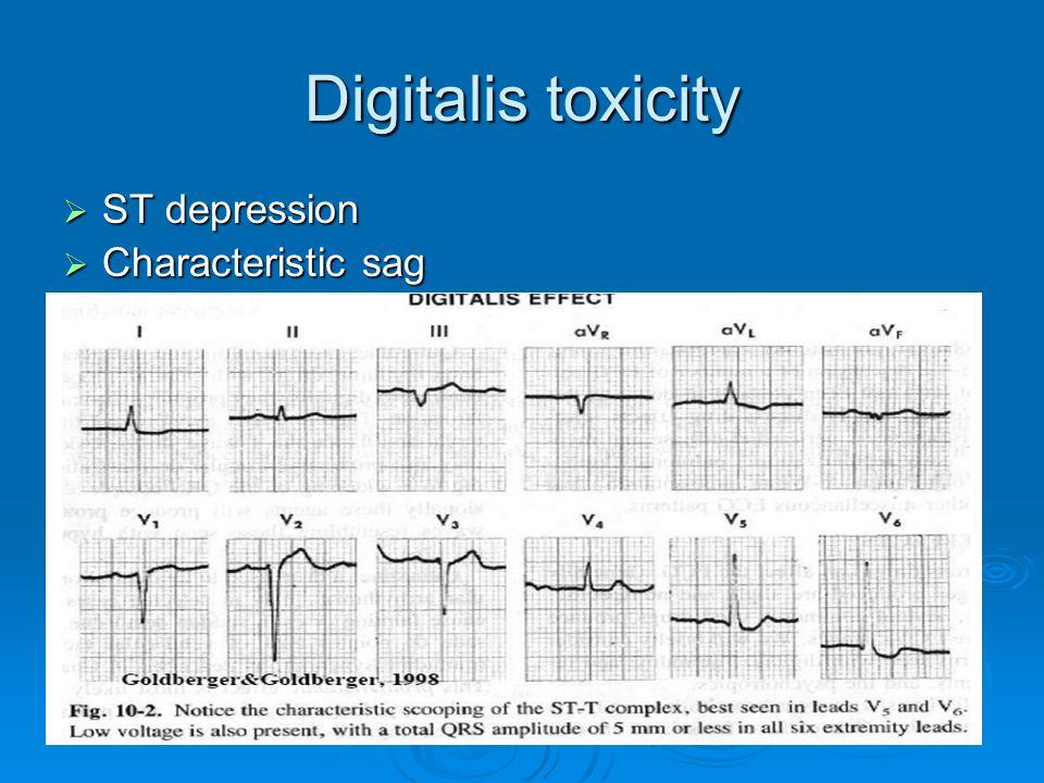 Digitalis toxicity  ST depression  Characteristic sag