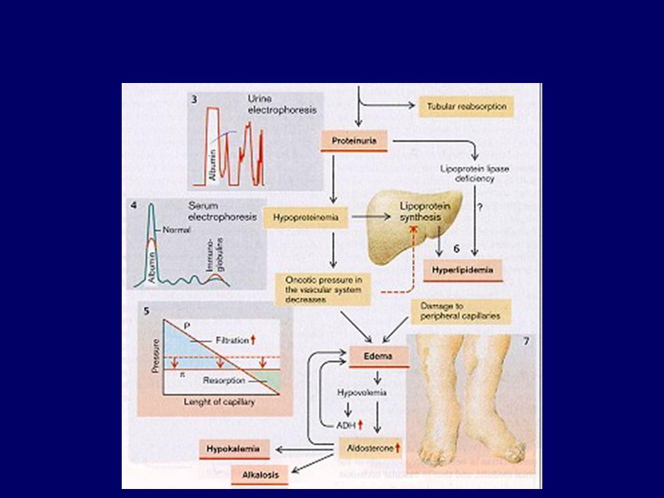 Pathogenesis of edema formation 2.  gradient of oncotic pressures (  c -  i ) -  plasma protein level -  EABV  R-A-A (SAS, ADH)