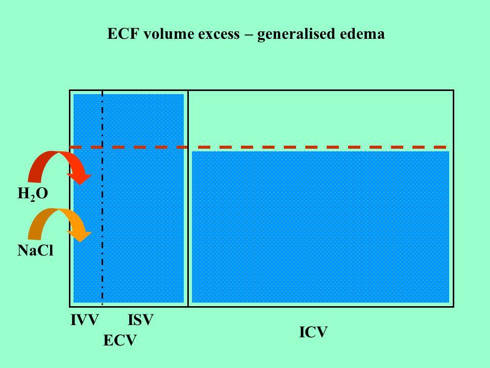 ICV ECV IVVISV H2OH2O NaCl ECF volume excess – generalised edema
