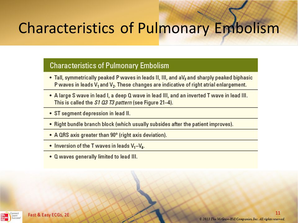 Fast & Easy ECGs, 2E © 2013 The McGraw-Hill Companies, Inc. All rights reserved. Characteristics of Pulmonary Embolism 11