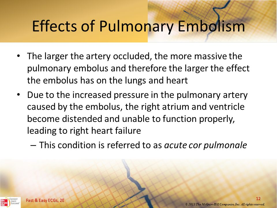 Fast & Easy ECGs, 2E © 2013 The McGraw-Hill Companies, Inc. All rights reserved. Effects of Pulmonary Embolism The larger the artery occluded, the mor