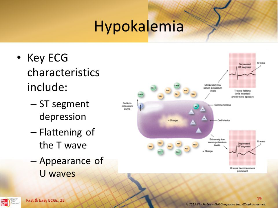 Fast & Easy ECGs, 2E © 2013 The McGraw-Hill Companies, Inc. All rights reserved. Hypokalemia Key ECG characteristics include: – ST segment depression
