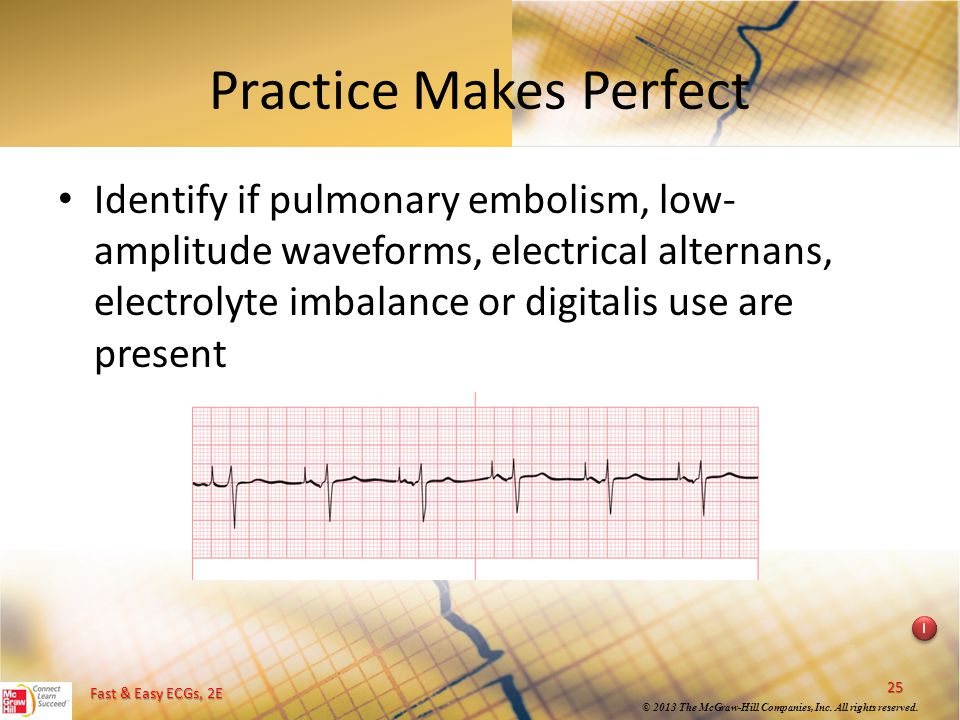 Fast & Easy ECGs, 2E © 2013 The McGraw-Hill Companies, Inc. All rights reserved. Practice Makes Perfect Identify if pulmonary embolism, low- amplitude